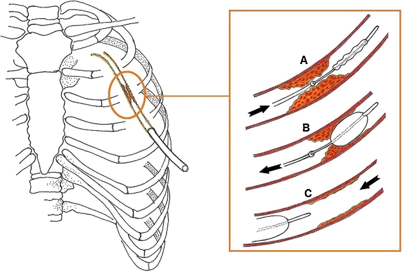 Image from Ref. 1, Boyacioglu et al.