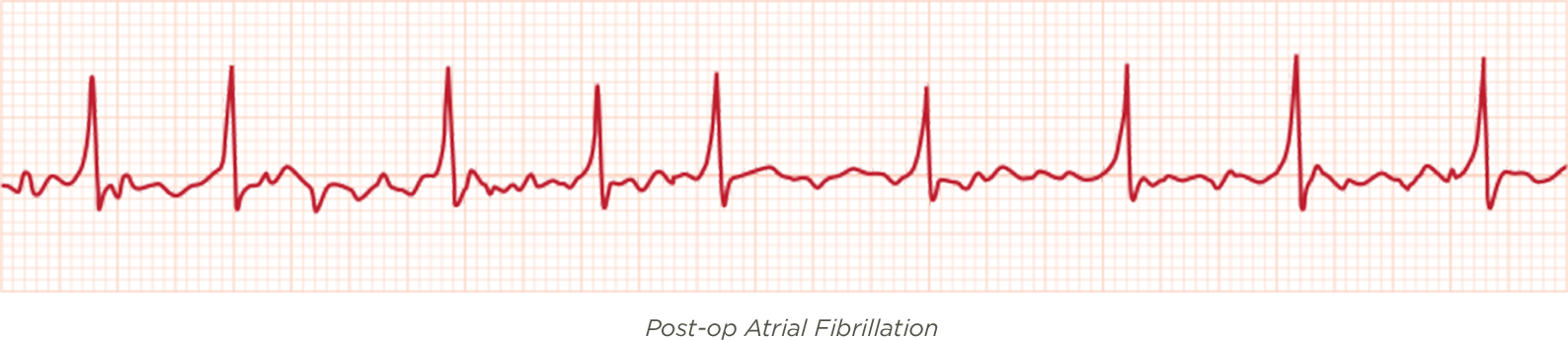 Post-op Atrial Fibrillation